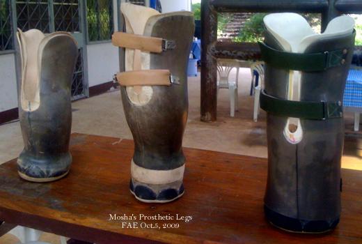 Mosha's Prosthetic Legs