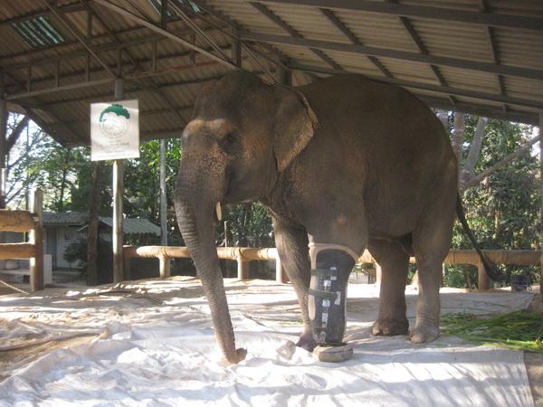 Motala's Newest Prosthetic Leg 2.2011