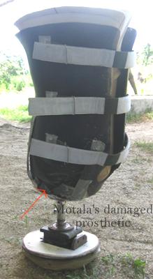 Motala's damaged prosthetic leg