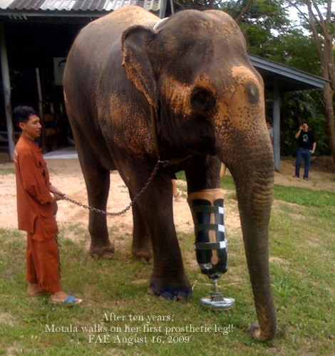 Motala walks on her new prosthetic leg..8/16/09